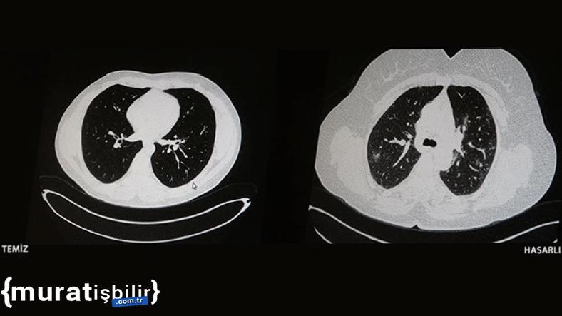 COVID-19 Hastalarının İbretlik Tomografi Görüntüleri