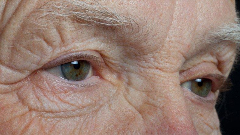 Göz Bozukluğu Olanlarda 'Bunama' Riskinin Daha Yüksek